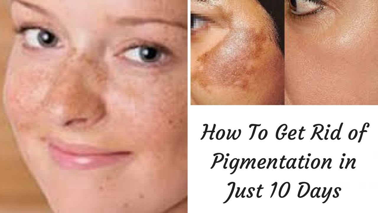 Hormonal pigmentation how to get rid of it